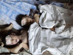 Syrie les vrais enfants victimes ont été tués par les rebelles alliés des États-Unis, du Royaume-Uni et de la France  dans Crimes de Guerre, Terrorisme 1_3983_9d457